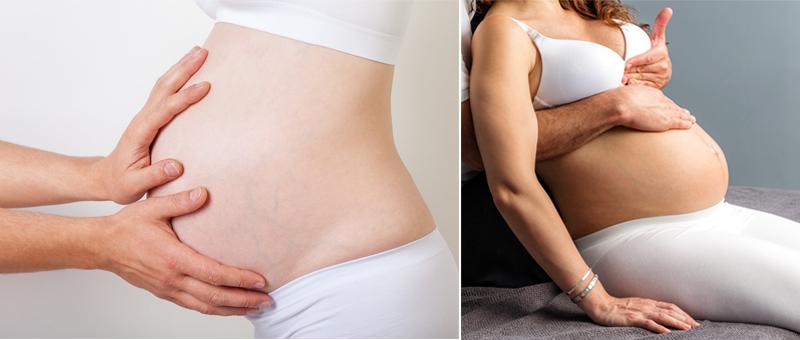 Osteopathie in der Schwangerschaft ist eine sinnvolle Behandlungsform